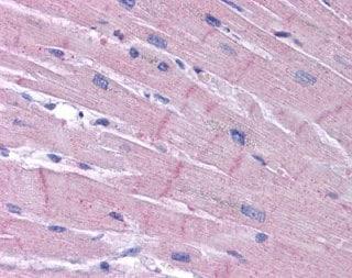Immunohistochemistry (Formalin/PFA-fixed paraffin-embedded sections) - Anti-KCNK18/TRESK antibody (ab113883)