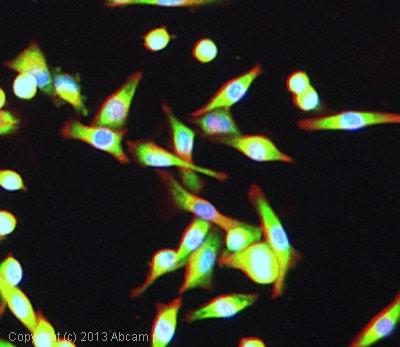 Immunocytochemistry/ Immunofluorescence - Anti-GIV antibody (ab113890)