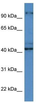 Western blot - Anti-Caytaxin antibody (ab113923)