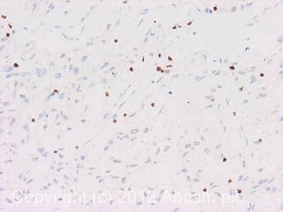 Immunohistochemistry (Formalin/PFA-fixed paraffin-embedded sections) - Anti-HMGB2 antibody (ab113929)