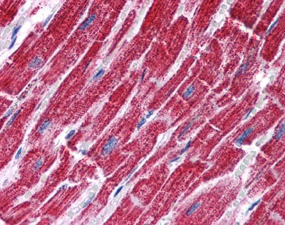 Immunohistochemistry (Formalin/PFA-fixed paraffin-embedded sections) - Anti-FH/Fumarase antibody (ab113963)