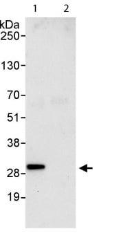 Immunoprecipitation - Anti-BTF3 antibody (ab113974)