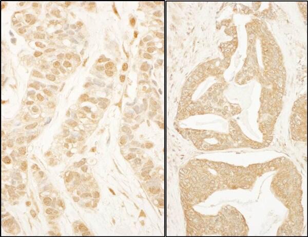 Immunohistochemistry (Formalin/PFA-fixed paraffin-embedded sections) - Anti-BTF3 antibody (ab113974)