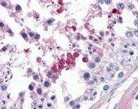 Immunohistochemistry (Formalin/PFA-fixed paraffin-embedded sections) - Anti-Septin 3 antibody (ab113983)