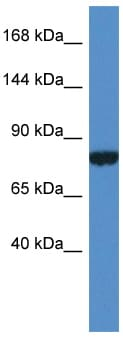 Western blot - Anti-PDK2L1 antibody (ab113987)