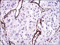 Immunohistochemistry (Formalin/PFA-fixed paraffin-embedded sections) - Anti-CD105 antibody [3A9] (ab114052)