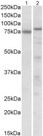 Western blot - Anti-p63 antibody (ab114059)