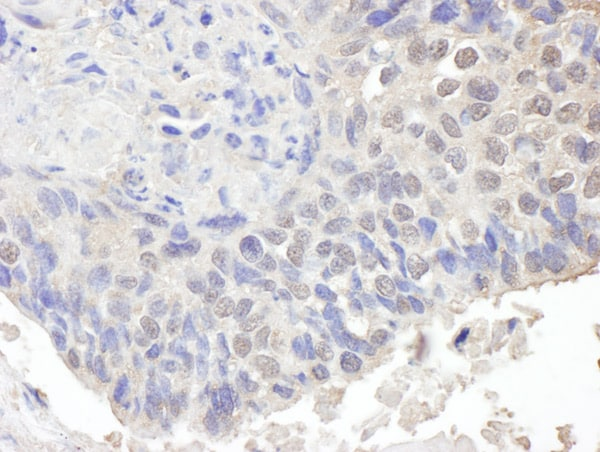 Immunohistochemistry (Formalin/PFA-fixed paraffin-embedded sections) - Anti-CHD8 antibody (ab114126)