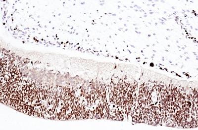 Immunohistochemistry (Formalin/PFA-fixed paraffin-embedded sections) - Anti-Otx2 antibody (ab114138)