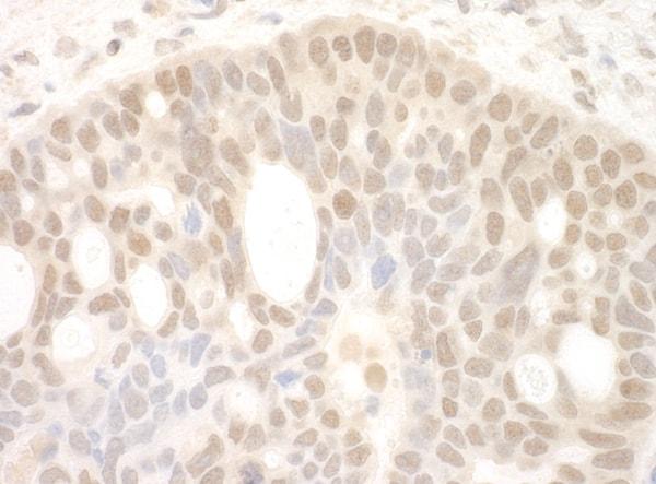Immunohistochemistry (Formalin/PFA-fixed paraffin-embedded sections) - Anti-SPF45 antibody (ab114968)