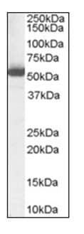 Western blot - Anti-ALDH1A1 antibody (ab115252)