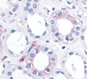Immunohistochemistry (Formalin/PFA-fixed paraffin-embedded sections) - Anti-EPHX2 antibody (ab115284)