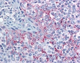 Immunohistochemistry (Formalin/PFA-fixed paraffin-embedded sections) - Anti-MTBP antibody (ab115529)