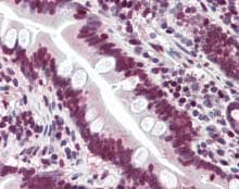 Immunohistochemistry (Formalin/PFA-fixed paraffin-embedded sections) - Anti-LASS6/CERS6 antibody (ab115539)