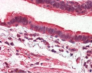 Immunohistochemistry (Formalin/PFA-fixed paraffin-embedded sections) - Anti-MASS1 antibody (ab115621)