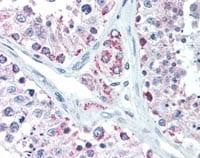 Immunohistochemistry (Formalin/PFA-fixed paraffin-embedded sections) - Anti-Lin28B antibody (ab115698)