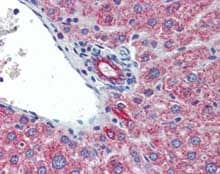 Immunohistochemistry (Formalin/PFA-fixed paraffin-embedded sections) - Anti-IL23 antibody (ab115759)