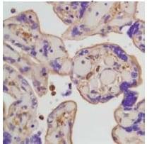 Immunohistochemistry (Formalin/PFA-fixed paraffin-embedded sections) - Anti-beta Actin antibody [SP124] (ab115777)