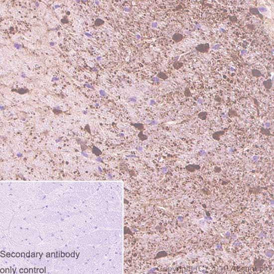 Immunohistochemistry (Formalin/PFA-fixed paraffin-embedded sections) - Anti-S100 beta antibody [SP127] (ab115803)