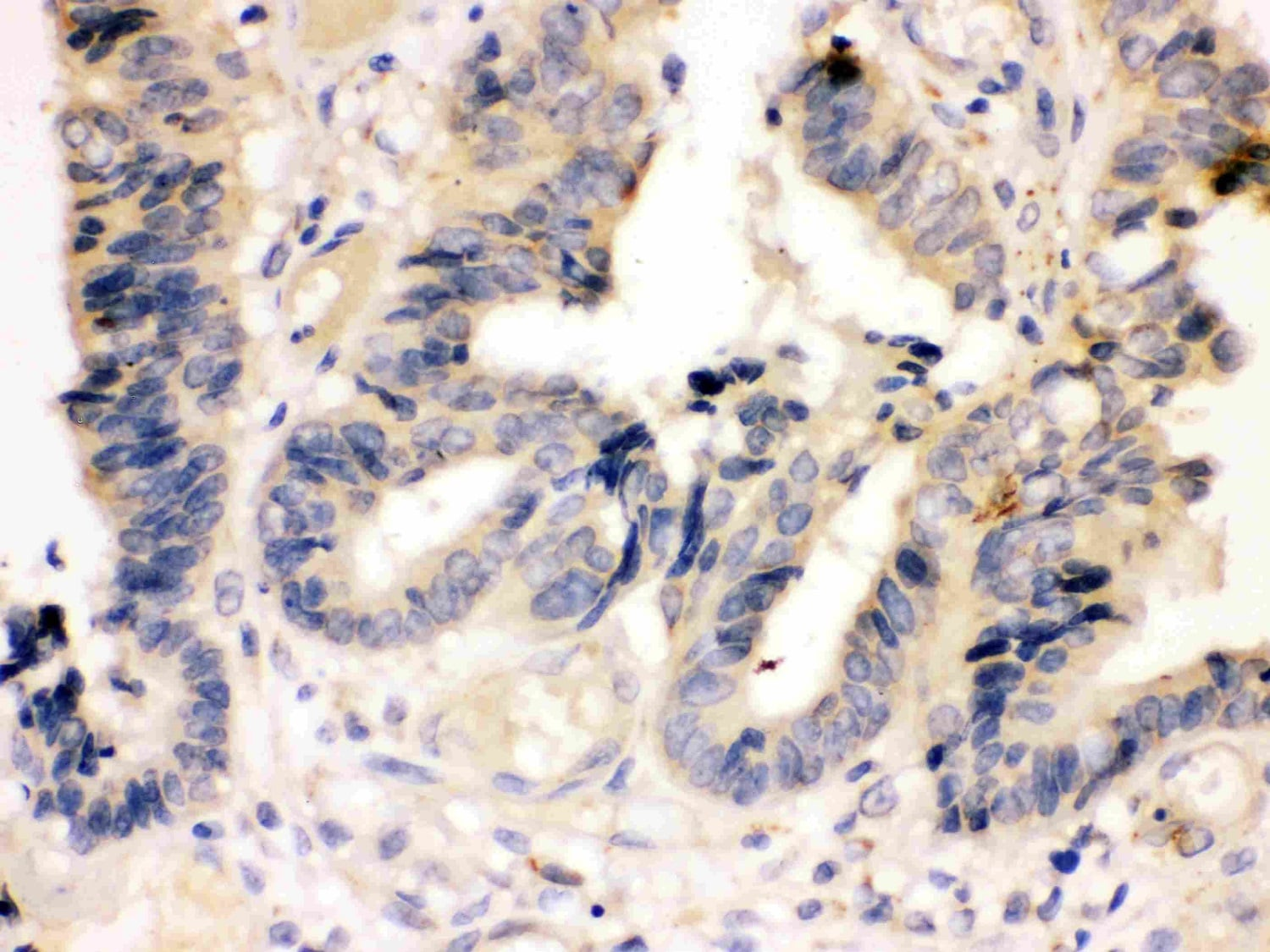 Immunohistochemistry (Formalin/PFA-fixed paraffin-embedded sections) - Anti-Caspase-7 antibody (ab115815)