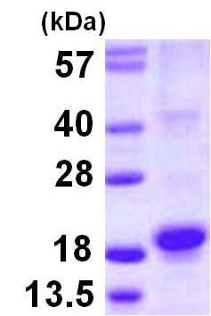 SDS-PAGE - Recombinant Human RGS21 protein (ab116158)