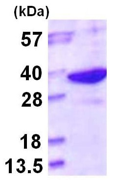 SDS-PAGE - Recombinant Human LHPP protein (ab116175)