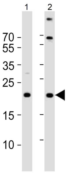 Western blot - Anti-TIMM23/TIM23 antibody (ab116329)