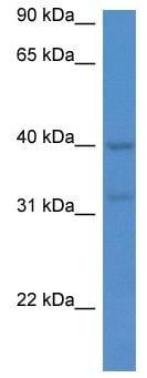Western blot - Anti-Melatonin Receptor 1A/MTNR1A antibody (ab116337)