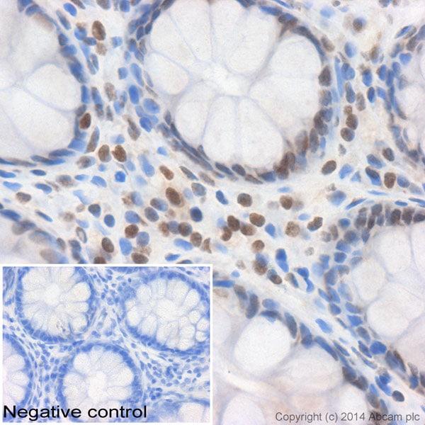 Immunohistochemistry (Formalin/PFA-fixed paraffin-embedded sections) - Anti-Histone H1.4 antibody (ab116393)