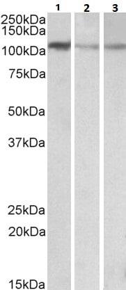 Western blot - Anti-MTHFD1L antibody (ab116615)