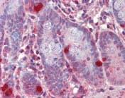 Immunohistochemistry (Formalin/PFA-fixed paraffin-embedded sections) - Anti-RGS1 antibody (ab117077)