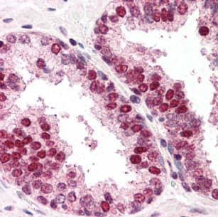 Immunohistochemistry (Formalin/PFA-fixed paraffin-embedded sections) - Anti-RAD52 antibody (ab117097)