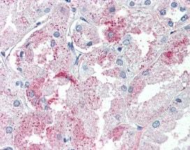 Immunohistochemistry (Formalin/PFA-fixed paraffin-embedded sections) - Anti-GPCR GPR146 antibody (ab117104)