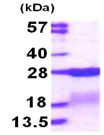 SDS-PAGE - Recombinant Human RPS7 protein (ab117224)