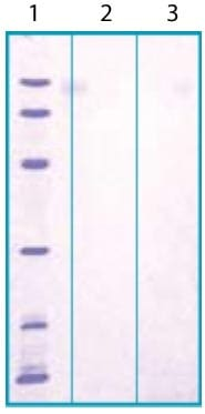 SDS-PAGE - Recombinant Human PI-16 protein (ab117229)