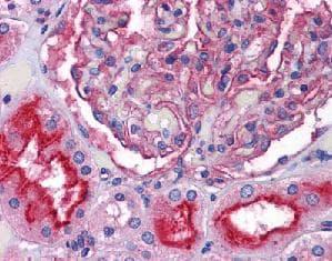 Immunohistochemistry (Formalin/PFA-fixed paraffin-embedded sections) - Anti-ZIP-10 antibody (ab117556)