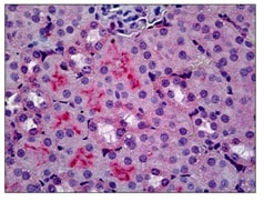 Immunohistochemistry (Formalin/PFA-fixed paraffin-embedded sections) - Anti-C5a-R antibody [10/92] (ab117579)