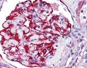 Immunohistochemistry (Formalin/PFA-fixed paraffin-embedded sections) - Anti-FREM2 antibody (ab117612)