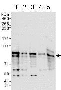 Western blot - Anti-ZFP64 antibody (ab117787)