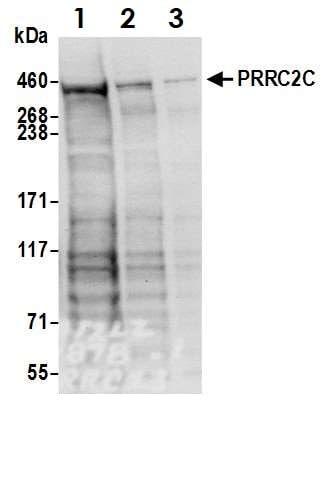 Western blot - Anti-PRRC2C antibody (ab117790)