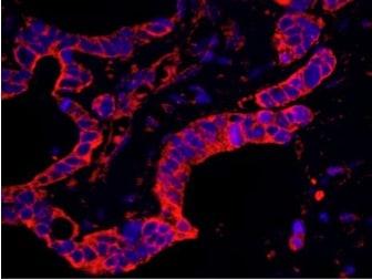 Immunocytochemistry/ Immunofluorescence - Anti-P97/DAP5 antibody (ab117804)