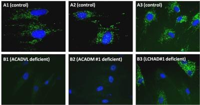 Immunocytochemistry - Fatty Acid Oxidation Human In-Cell ELISA Kit (ab118182)