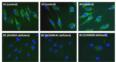 Immunocytochemistry - Fatty Acid Oxidation Human Flow Cytometry Kit (ab118183)
