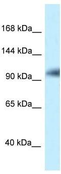 Western blot - Anti-KANSL1 antibody (ab118187)