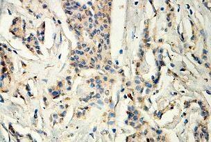 Immunohistochemistry (Formalin/PFA-fixed paraffin-embedded sections) - Anti-PHYH antibody (ab118195)