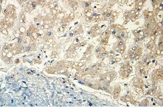 Immunohistochemistry (Formalin/PFA-fixed paraffin-embedded sections) - Anti-ISOC2 antibody (ab118201)
