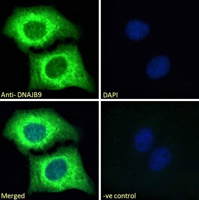 Immunocytochemistry - Anti-DNAJB9 antibody (ab118282)