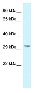 Western blot - Anti-GNMT antibody (ab118298)
