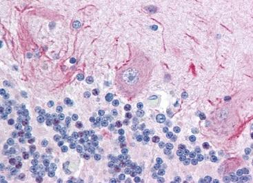 Immunohistochemistry (Formalin/PFA-fixed paraffin-embedded sections) - Anti-RSK1 p90 (phospho T368 + S372) antibody (ab118309)