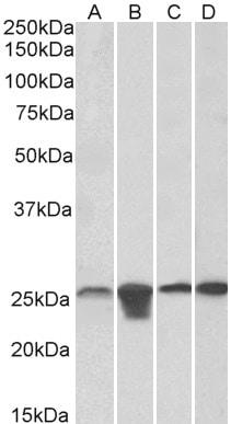 Western blot - Anti-SOD2/MnSOD antibody (ab118340)